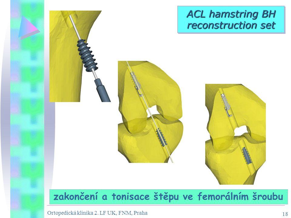 Ortopedická klinika 2. LF UK, FNM, Praha 18 zakončení a tonisace štěpu ve femorálním šroubu ACL hamstring BH reconstruction set