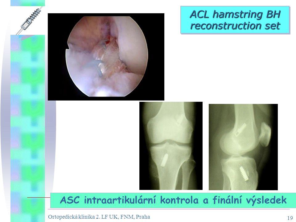 Ortopedická klinika 2. LF UK, FNM, Praha 19 ASC intraartikulární kontrola a finální výsledek ACL hamstring BH reconstruction set