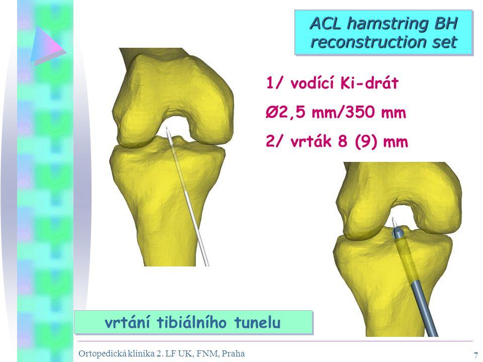 Ortopedická klinika 2. LF UK, FNM, Praha 7 ACL hamstring BH reconstruction set vrtání tibiálního tunelu 1/ vodící Ki-drát Ø2,5 mm/350 mm 2/ vrták 8 (9