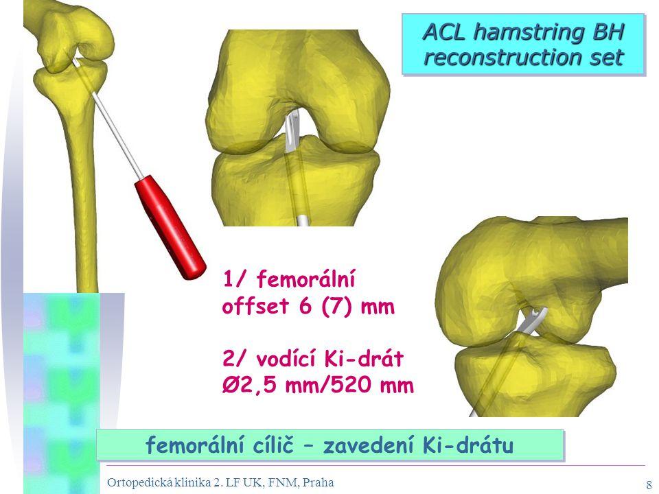 Ortopedická klinika 2. LF UK, FNM, Praha 8 femorální cílič – zavedení Ki-drátu ACL hamstring BH reconstruction set 1/ femorální offset 6 (7) mm 2/ vod