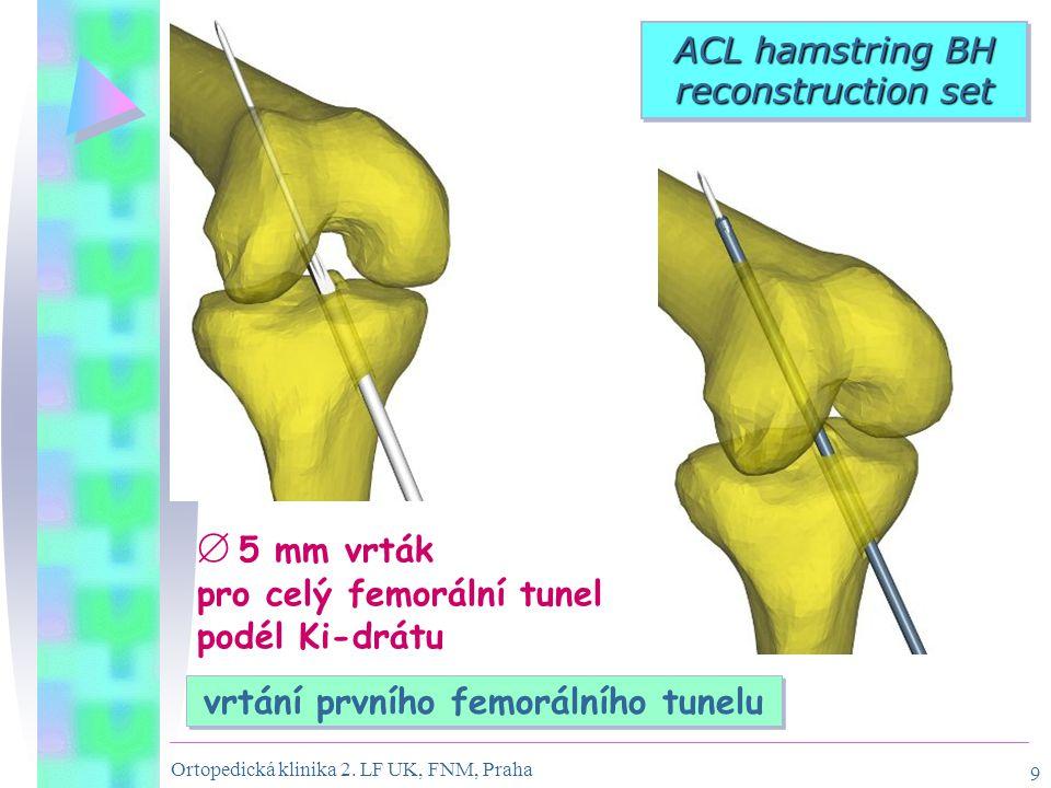 Ortopedická klinika 2. LF UK, FNM, Praha 9  5 mm vrták pro celý femorální tunel podél Ki-drátu ACL hamstring BH reconstruction set vrtání prvního fem