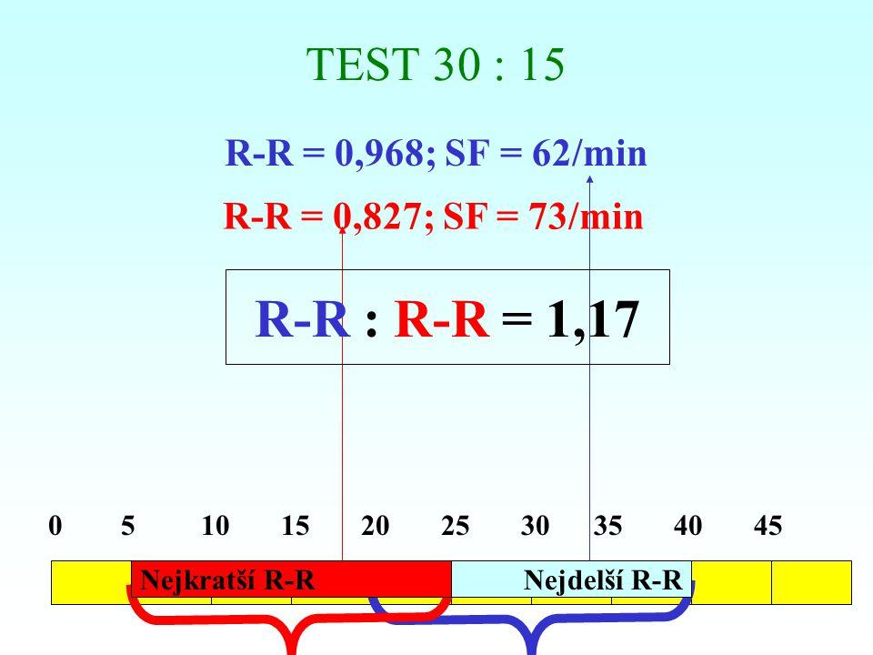 MENTÁLNÍ ZÁTĚŽOVÉ TESTY Postup vyšetření (příklad):  Mentální aritmetický stresor (rychlé odečítání čísla 7 od trojčíslí; případné chyby jsou ostře vytýkány.