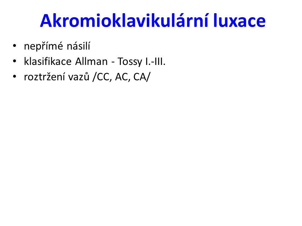 Akromioklavikulární luxace nepřímé násilí klasifikace Allman - Tossy I.-III. roztržení vazů /CC, AC, CA/