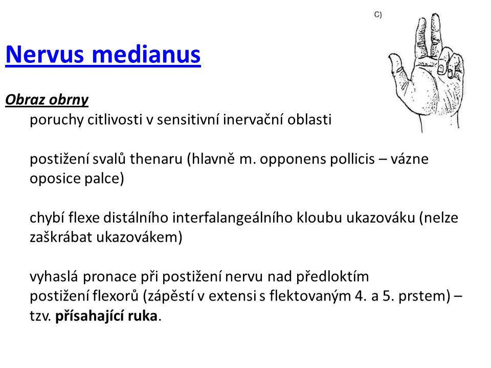 Nervus medianus Obraz obrny poruchy citlivosti v sensitivní inervační oblasti postižení svalů thenaru (hlavně m. opponens pollicis – vázne oposice pal