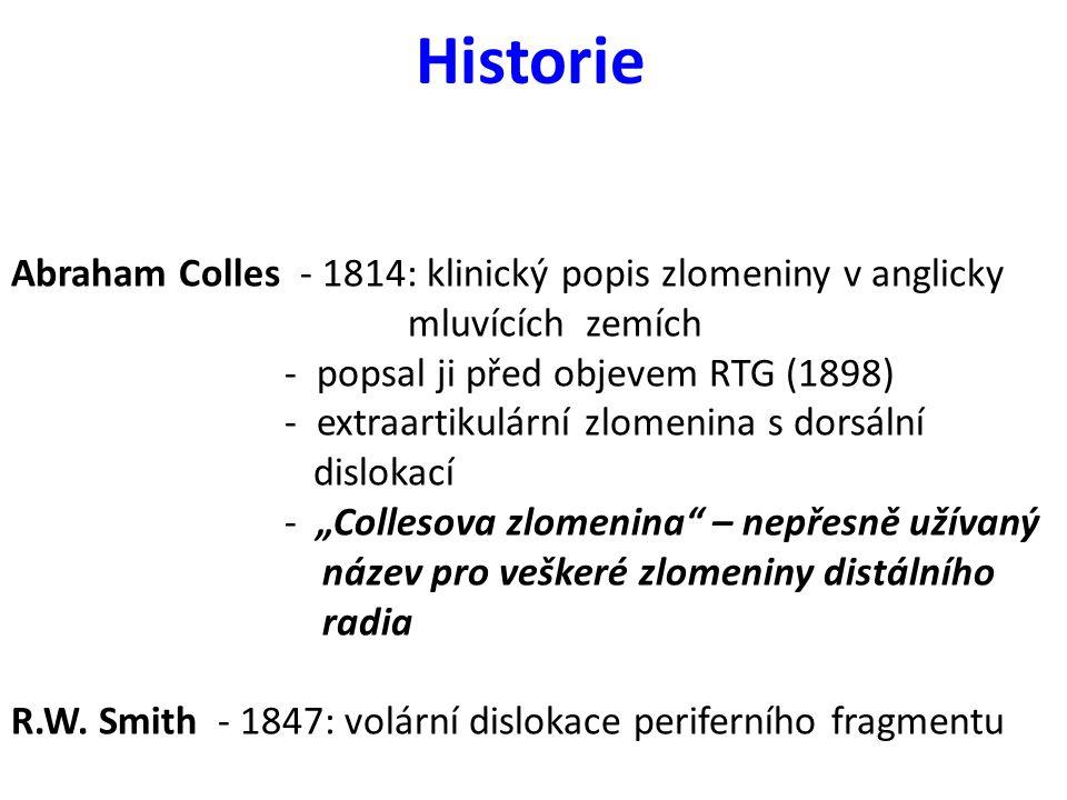 Historie Abraham Colles - 1814: klinický popis zlomeniny v anglicky mluvících zemích - popsal ji před objevem RTG (1898) - extraartikulární zlomenina