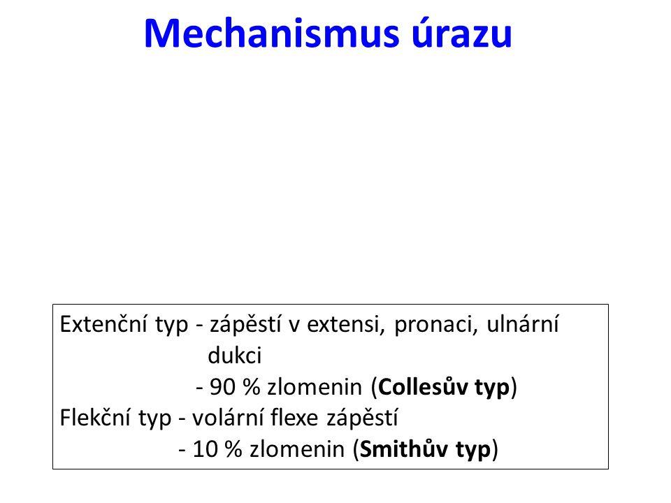 Mechanismus úrazu Extenční typ - zápěstí v extensi, pronaci, ulnární dukci - 90 % zlomenin (Collesův typ) Flekční typ - volární flexe zápěstí - 10 % z