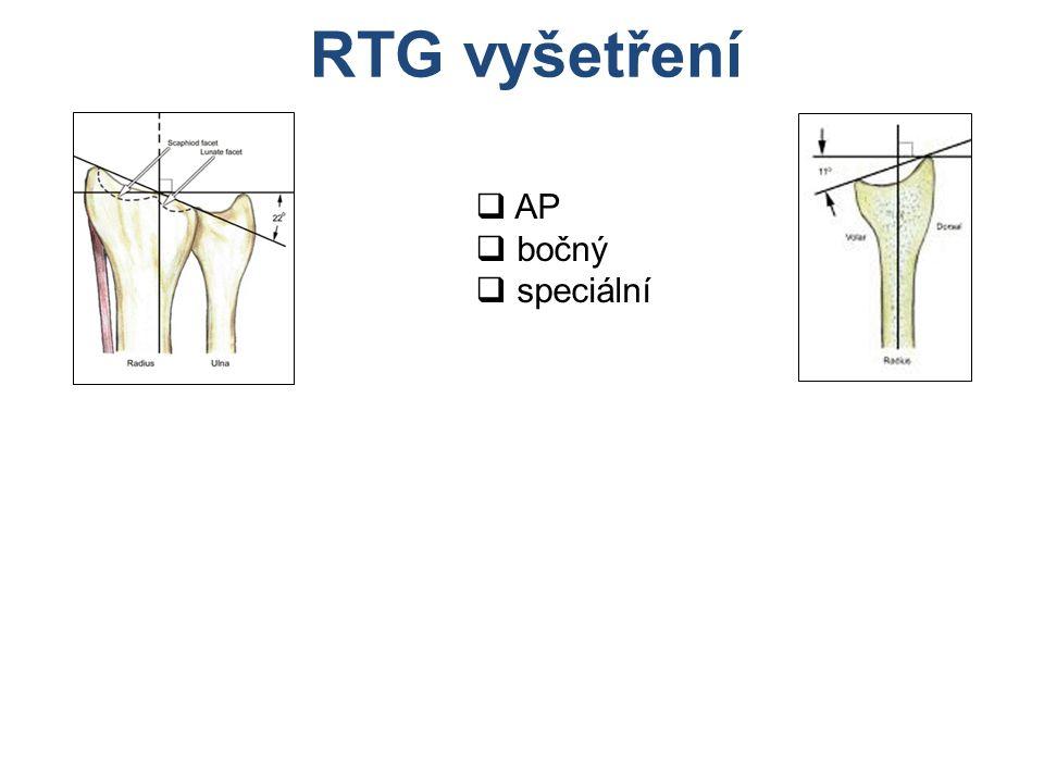 RTG vyšetření  AP  bočný  speciální