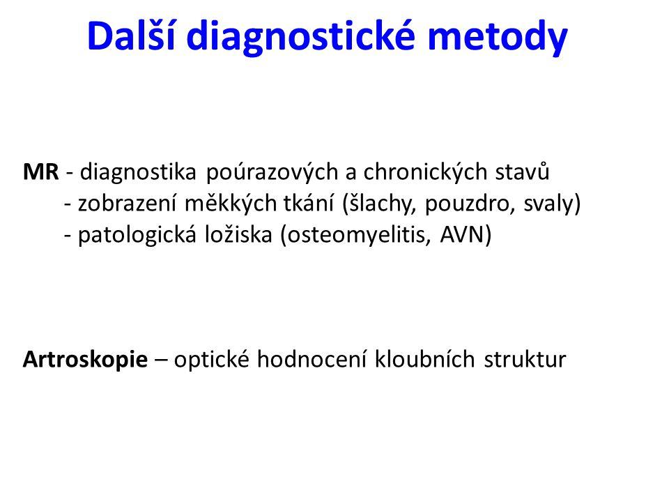Další diagnostické metody MR - diagnostika poúrazových a chronických stavů - zobrazení měkkých tkání (šlachy, pouzdro, svaly) - patologická ložiska (o