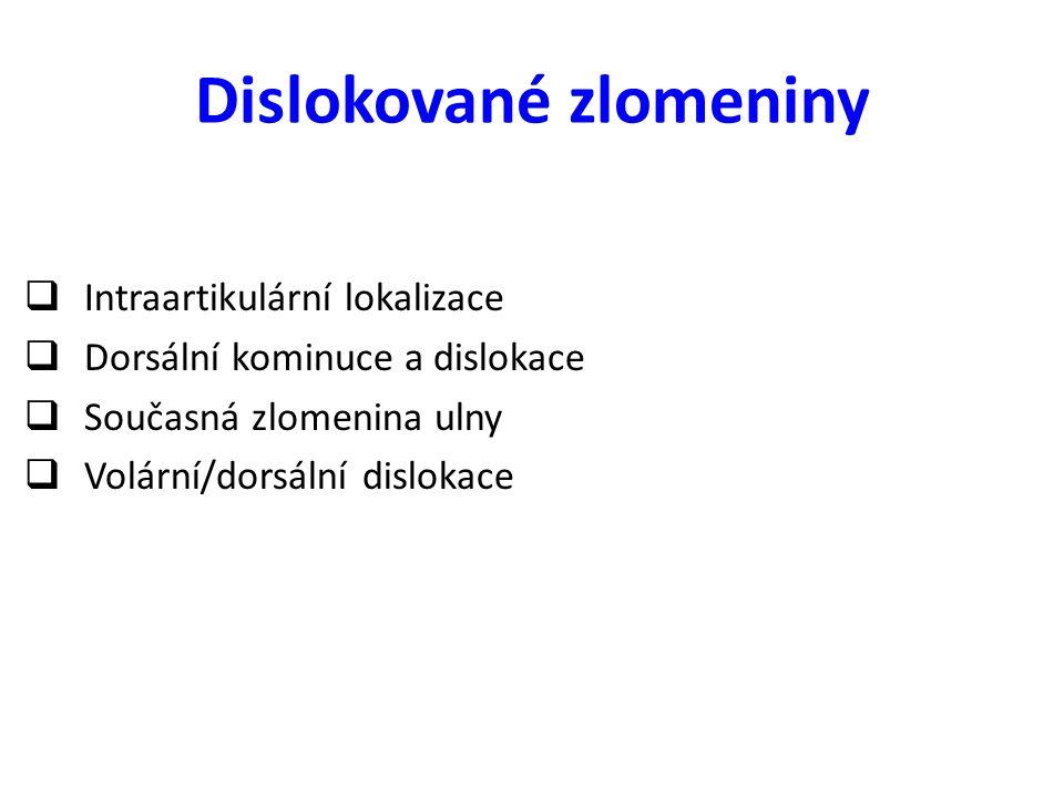 Dislokované zlomeniny  Intraartikulární lokalizace  Dorsální kominuce a dislokace  Současná zlomenina ulny  Volární/dorsální dislokace