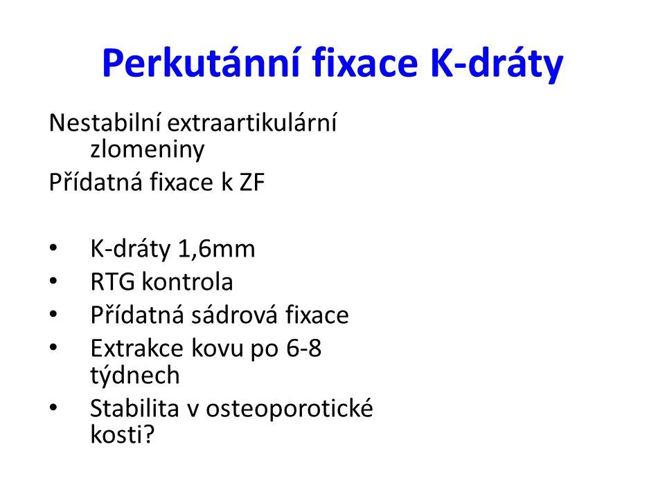 Nestabilní extraartikulární zlomeniny Přídatná fixace k ZF K-dráty 1,6mm RTG kontrola Přídatná sádrová fixace Extrakce kovu po 6-8 týdnech Stabilita v