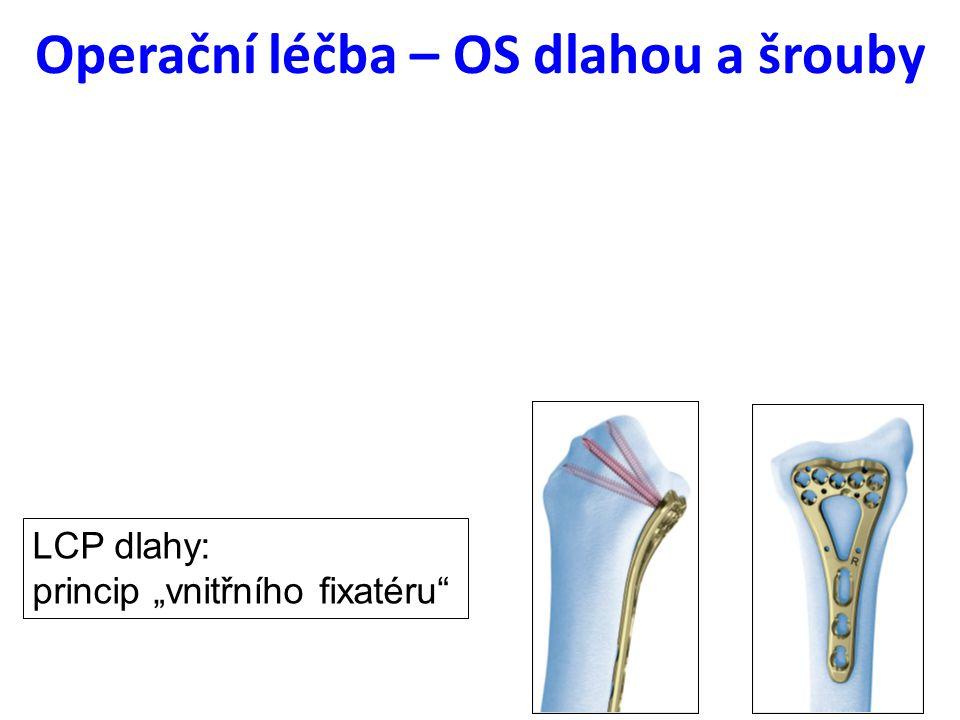"""Operační léčba – OS dlahou a šrouby LCP dlahy: princip """"vnitřního fixatéru"""""""