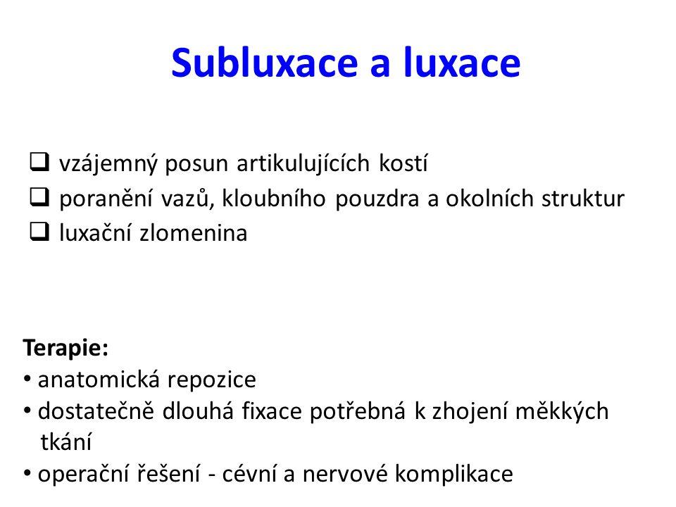 Subluxace a luxace  vzájemný posun artikulujících kostí  poranění vazů, kloubního pouzdra a okolních struktur  luxační zlomenina Terapie: anatomick