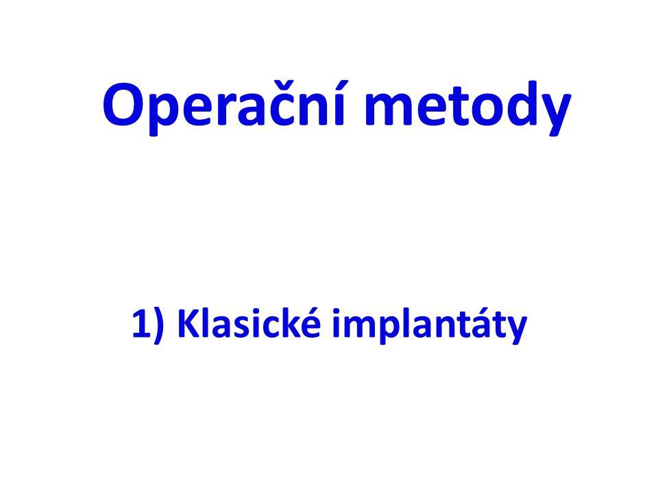 Operační metody 1) Klasické implantáty