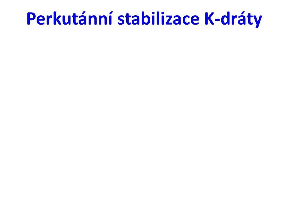 Perkutánní stabilizace K-dráty