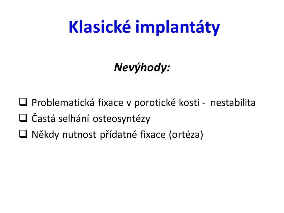 Klasické implantáty Nevýhody:  Problematická fixace v porotické kosti - nestabilita  Častá selhání osteosyntézy  Někdy nutnost přídatné fixace (ort