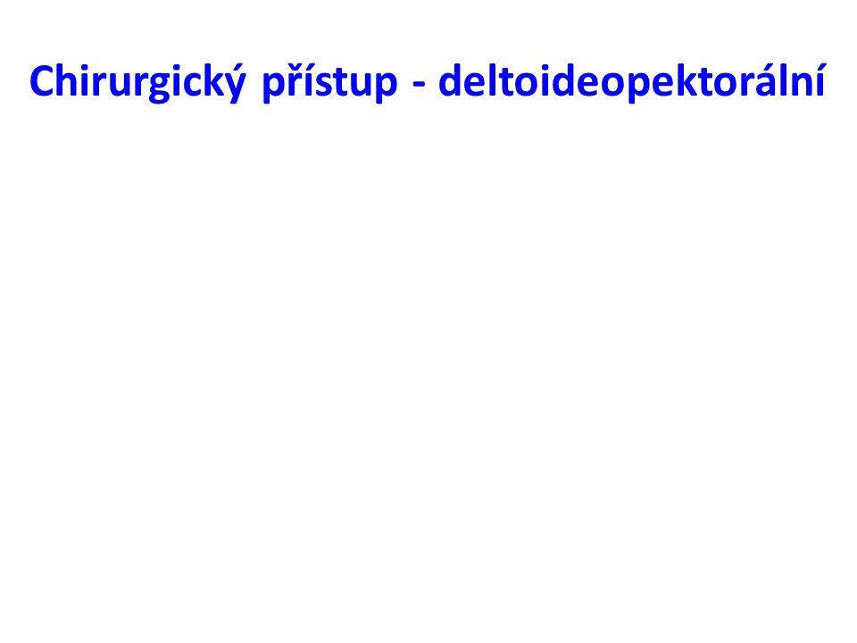 Chirurgický přístup - deltoideopektorální