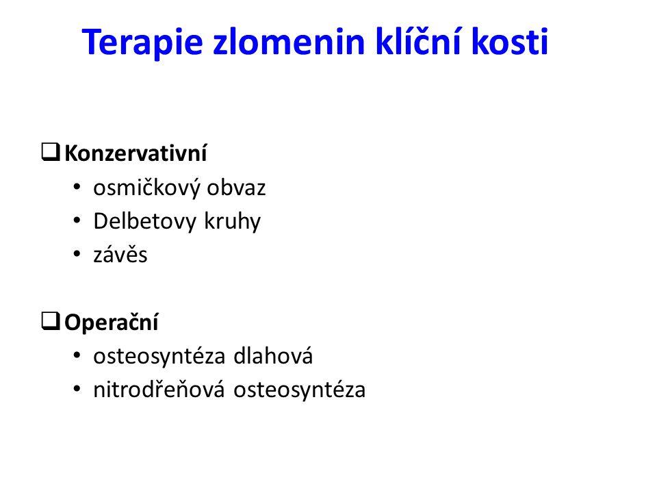 Terapie zlomenin klíční kosti  Konzervativní osmičkový obvaz Delbetovy kruhy závěs  Operační osteosyntéza dlahová nitrodřeňová osteosyntéza