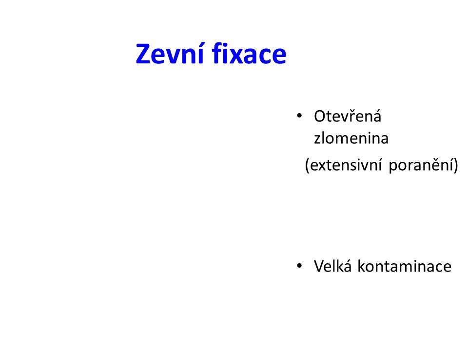 Otevřená zlomenina (extensivní poranění) Velká kontaminace Zevní fixace