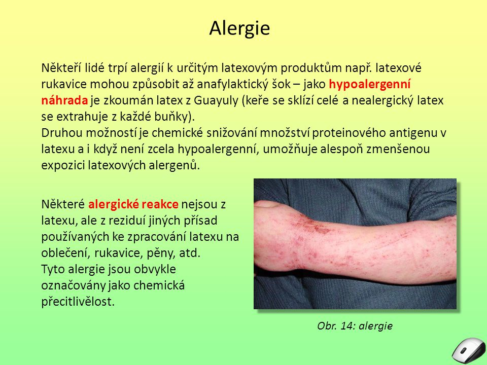 Alergie Někteří lidé trpí alergií k určitým latexovým produktům např. latexové rukavice mohou způsobit až anafylaktický šok – jako hypoalergenní náhra