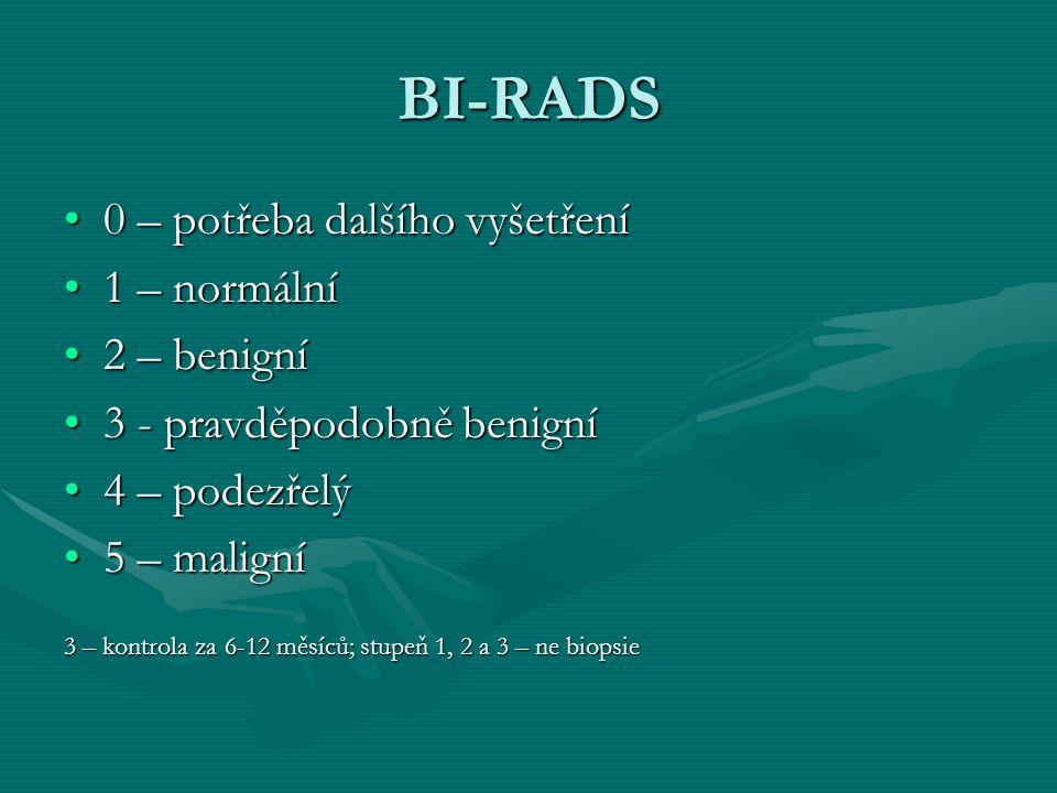 BI-RADS 0 – potřeba dalšího vyšetření0 – potřeba dalšího vyšetření 1 – normální1 – normální 2 – benigní2 – benigní 3 - pravděpodobně benigní3 - pravdě