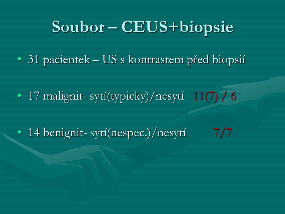 Soubor – CEUS+biopsie 31 pacientek – US s kontrastem před biopsií31 pacientek – US s kontrastem před biopsií 17 malignit- sytí(typicky)/nesytí 11(7) /