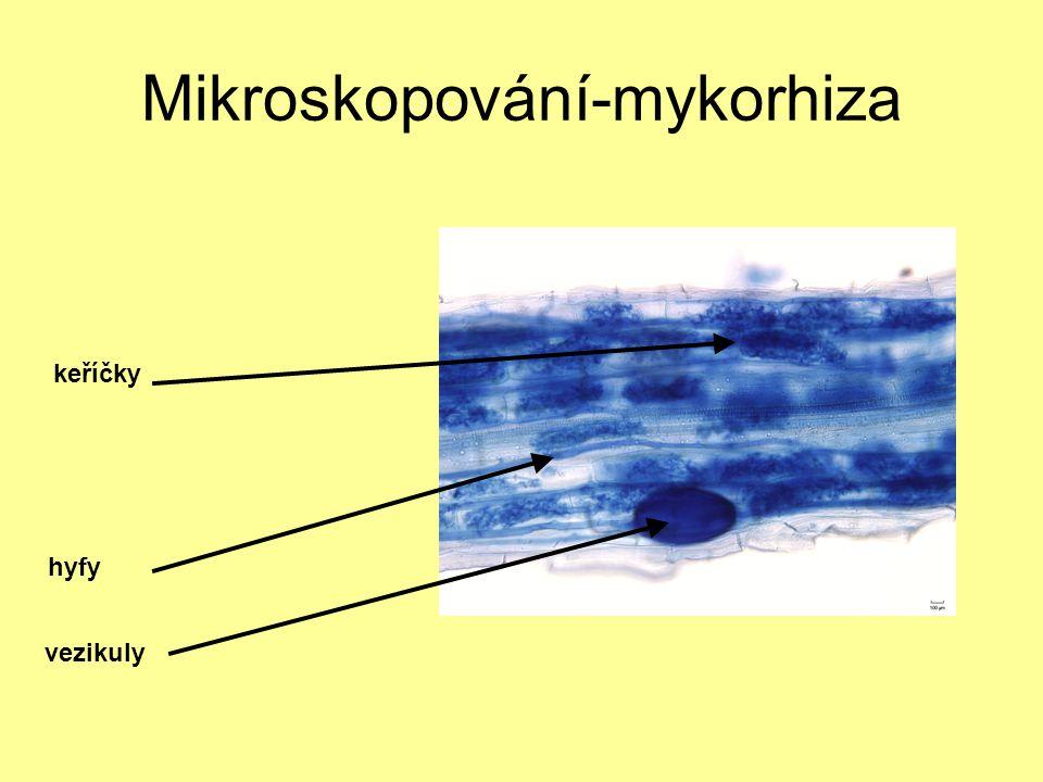 Mikroskopování-mykorhiza hyfy keříčky vezikuly
