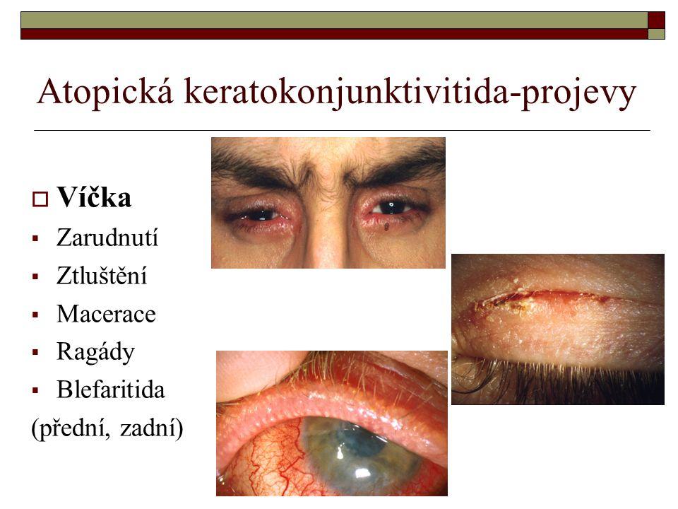 Atopická keratokonjunktivitida-projevy  Víčka  Zarudnutí  Ztluštění  Macerace  Ragády  Blefaritida (přední, zadní)
