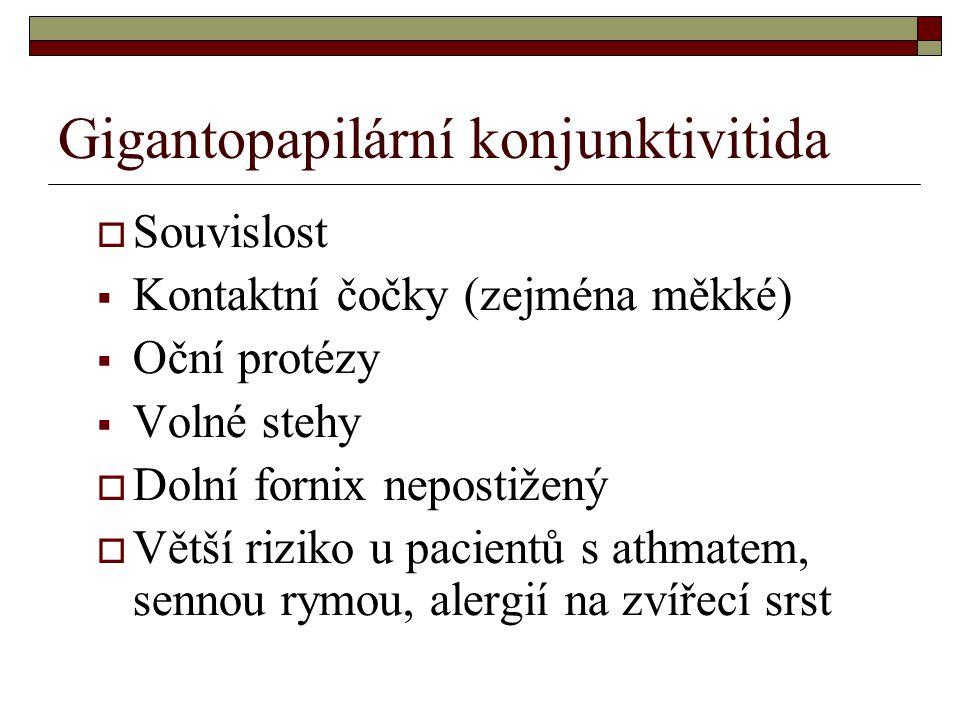 Gigantopapilární konjunktivitida  Souvislost  Kontaktní čočky (zejména měkké)  Oční protézy  Volné stehy  Dolní fornix nepostižený  Větší riziko