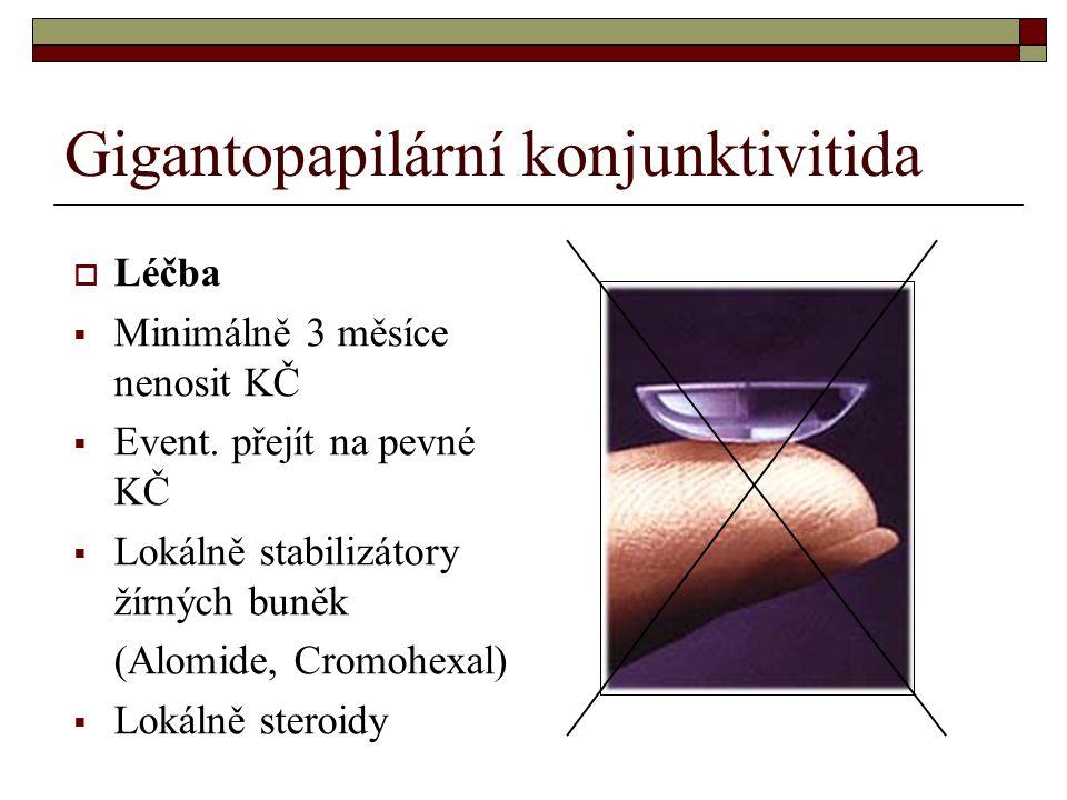 Gigantopapilární konjunktivitida  Léčba  Minimálně 3 měsíce nenosit KČ  Event. přejít na pevné KČ  Lokálně stabilizátory žírných buněk (Alomide, C