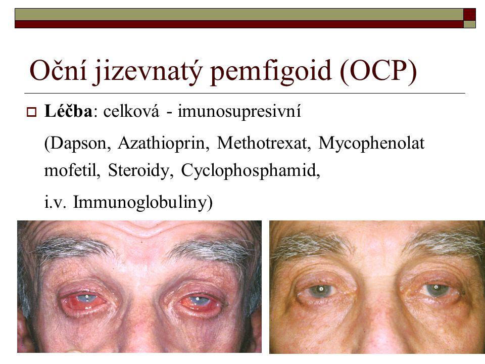  Léčba: celková - imunosupresivní (Dapson, Azathioprin, Methotrexat, Mycophenolat mofetil, Steroidy, Cyclophosphamid, i.v. Immunoglobuliny)