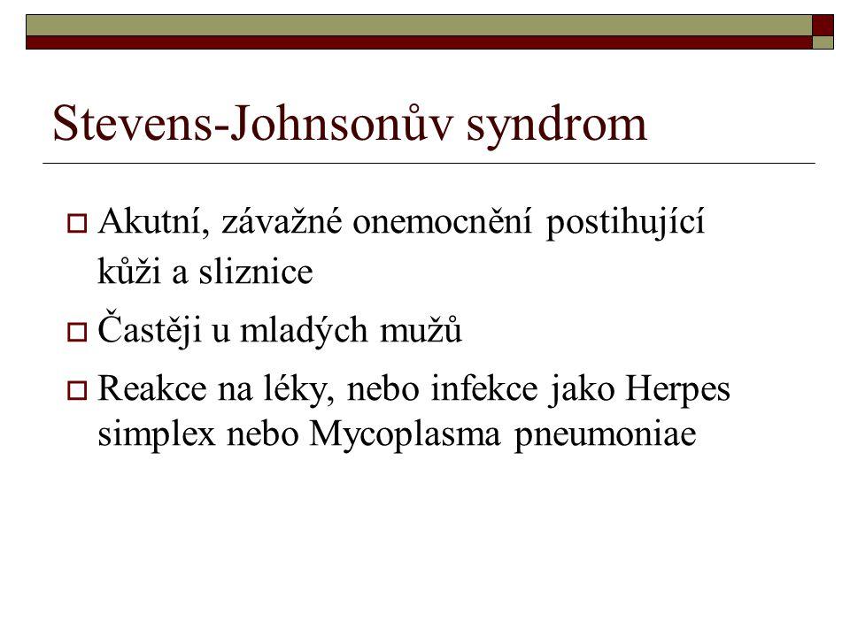 Stevens-Johnsonův syndrom  Akutní, závažné onemocnění postihující kůži a sliznice  Častěji u mladých mužů  Reakce na léky, nebo infekce jako Herpes