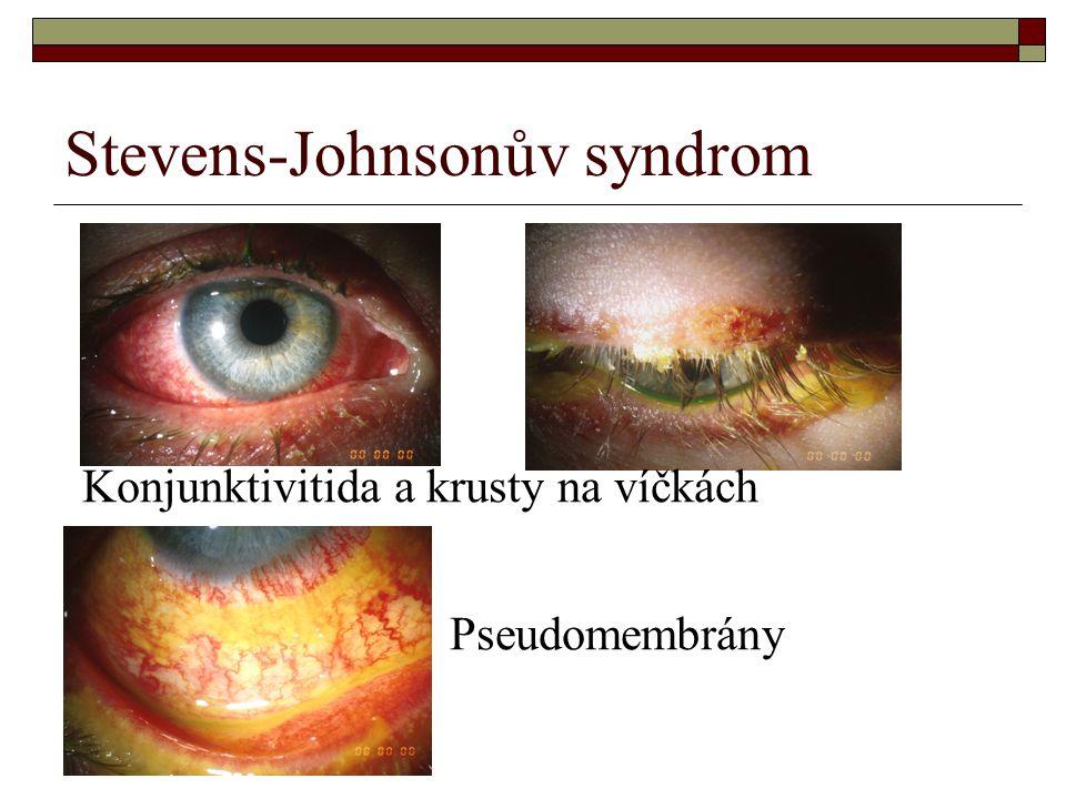 Stevens-Johnsonův syndrom Konjunktivitida a krusty na víčkách Pseudomembrány