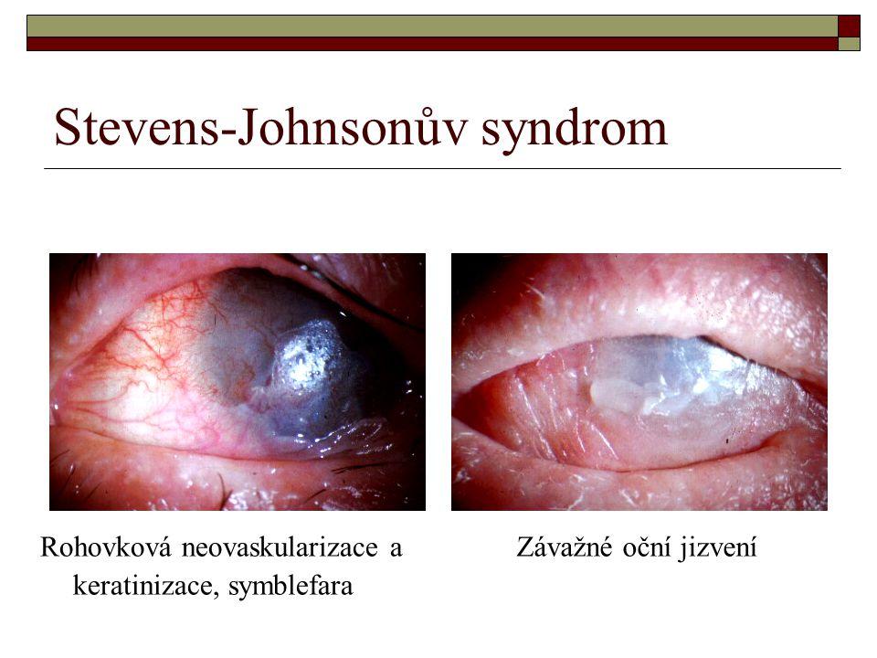 Stevens-Johnsonův syndrom Závažné oční jizveníRohovková neovaskularizace a keratinizace, symblefara