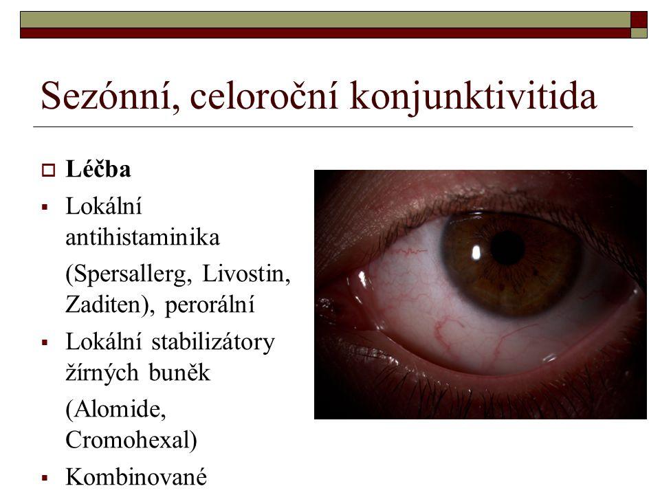 Sezónní, celoroční konjunktivitida  Léčba  Lokální antihistaminika (Spersallerg, Livostin, Zaditen), perorální  Lokální stabilizátory žírných buněk