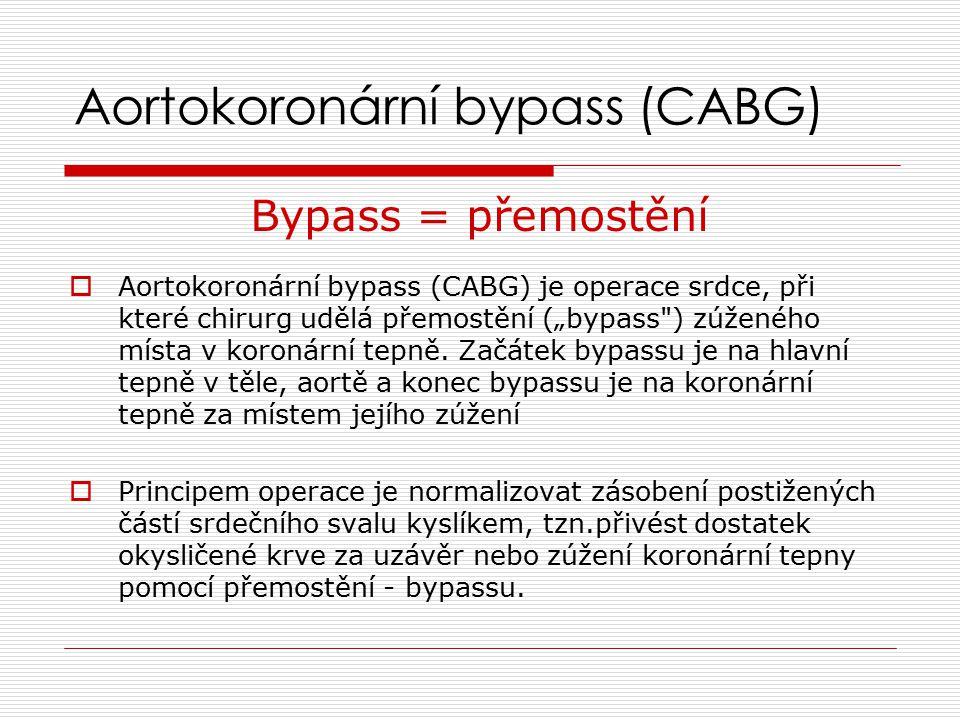 """Aortokoronární bypass (CABG) Bypass = přemostění  Aortokoronární bypass (CABG) je operace srdce, při které chirurg udělá přemostění (""""bypass ) zúženého místa v koronární tepně."""