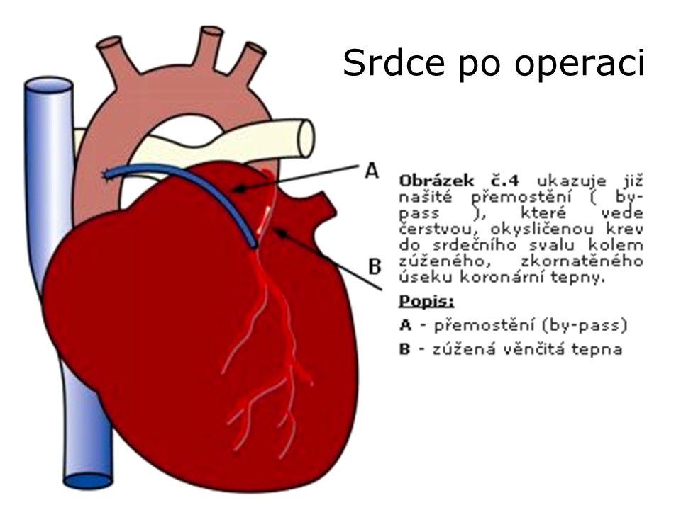 Srdce po operaci