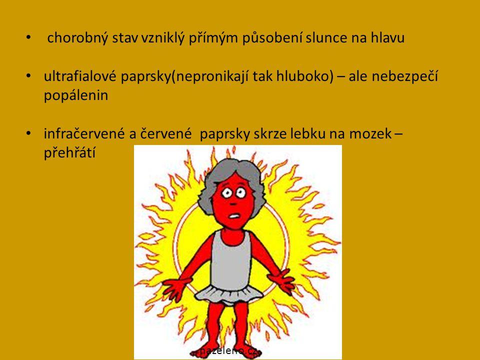 chorobný stav vzniklý přímým působení slunce na hlavu ultrafialové paprsky(nepronikají tak hluboko) – ale nebezpečí popálenin infračervené a červené paprsky skrze lebku na mozek – přehřátí nazeleno.cz