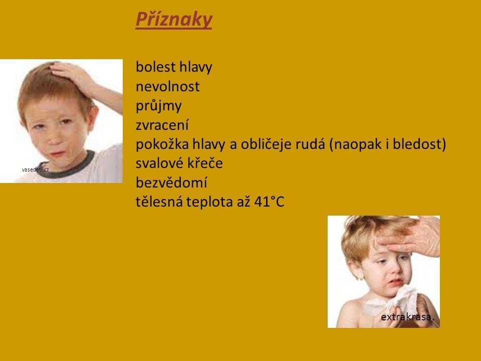 Příznaky bolest hlavy nevolnost průjmy zvracení pokožka hlavy a obličeje rudá (naopak i bledost) svalové křeče bezvědomí tělesná teplota až 41°C vased