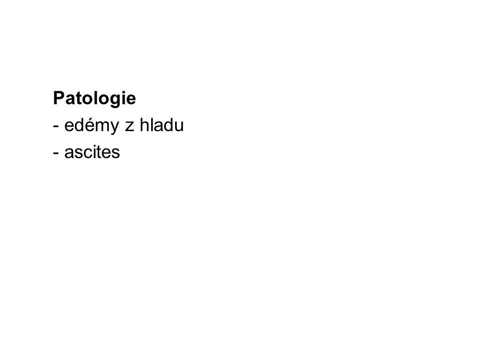 Patologie - edémy z hladu - ascites