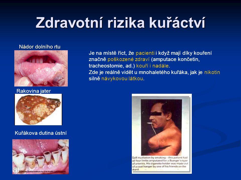 Zdravotní rizika kuřáctví Nádor dolního rtu Nádor dolního rtu Rakovina jater Kuřákova dutina ústní Je na místě říct, že pacienti i když mají díky kouř
