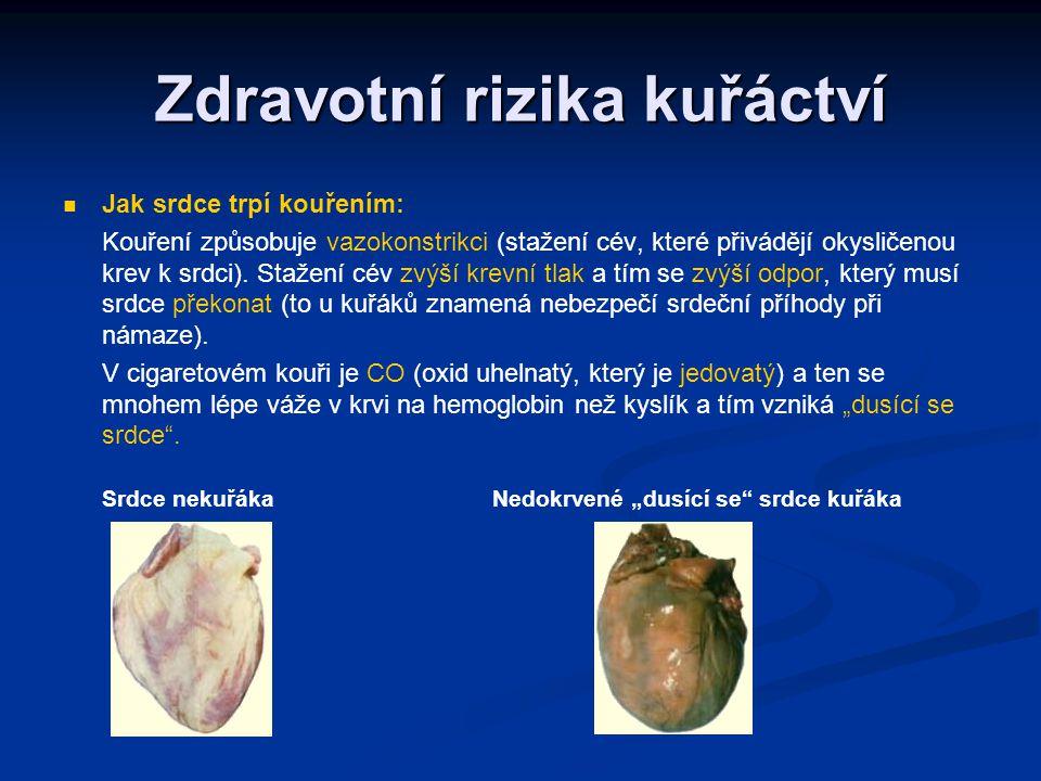 Zdravotní rizika kuřáctví Jak srdce trpí kouřením: Kouření způsobuje vazokonstrikci (stažení cév, které přivádějí okysličenou krev k srdci). Stažení c