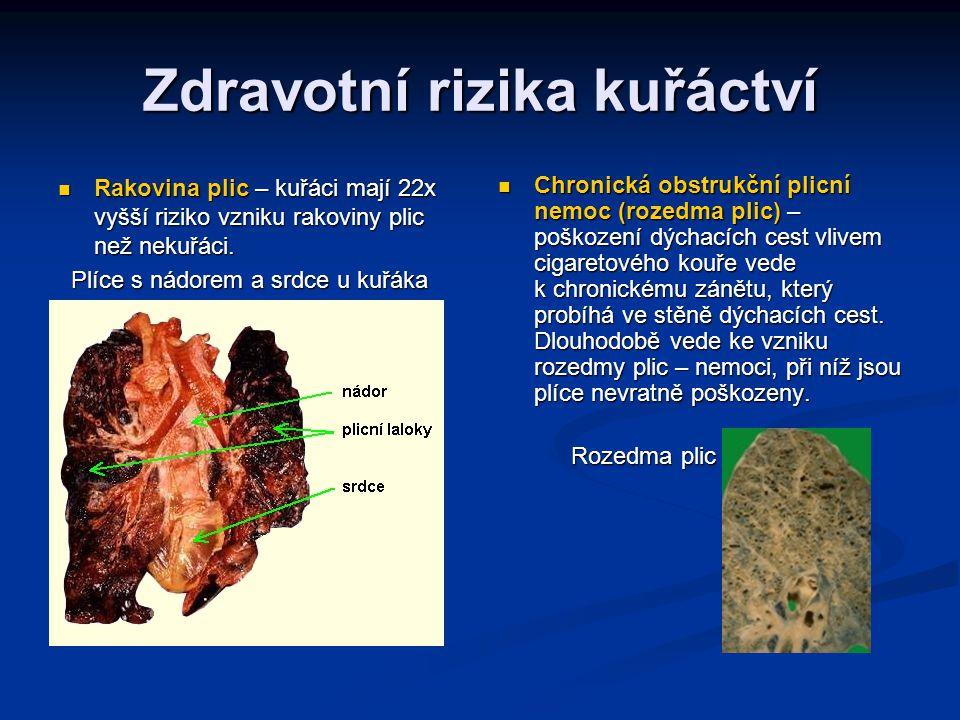 Zdravotní rizika kuřáctví Rakovina plic – kuřáci mají 22x vyšší riziko vzniku rakoviny plic než nekuřáci. Rakovina plic – kuřáci mají 22x vyšší riziko