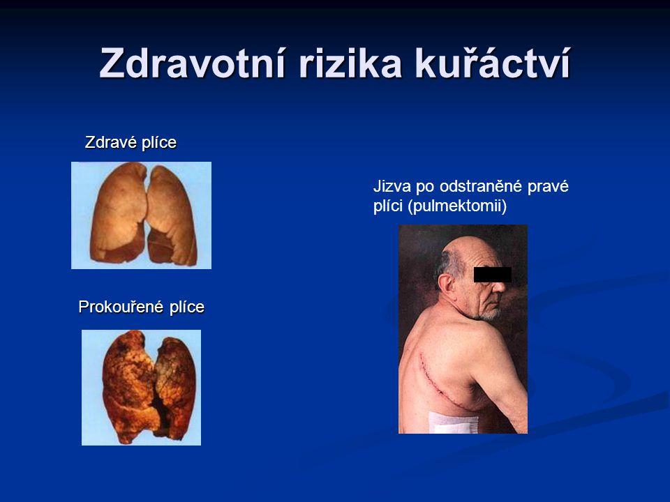 Zdravotní rizika kuřáctví Zdravé plíce Zdravé plíce Jizva po odstraněné pravé plíci (pulmektomii) Prokouřené plíce