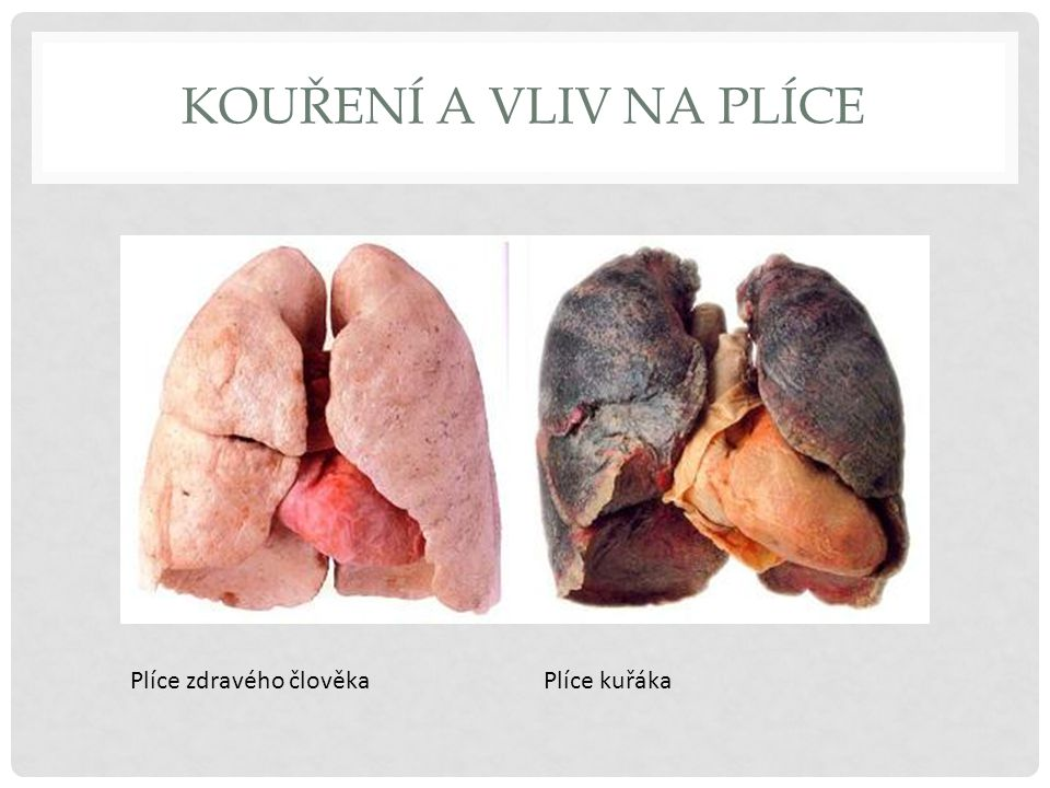 KOUŘENÍ A VLIV NA PLÍCE Výfukové plyny z aut obsahují méně škodlivin než tabákový kouř.