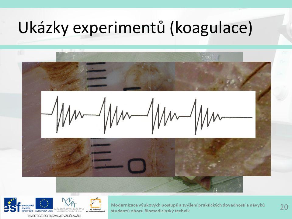 Modernizace výukových postupů a zvýšení praktických dovedností a návyků studentů oboru Biomedicínský technik Ukázky experimentů (koagulace) 20