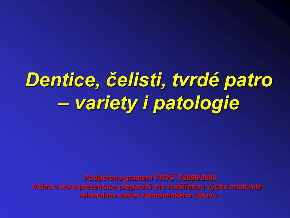 Dentice, čelisti, tvrdé patro – variety i patologie Podpořeno grantem FRVŠ F2866/2003 Video a www prezentace preparátů pro rozšířenou výuku anatomie -