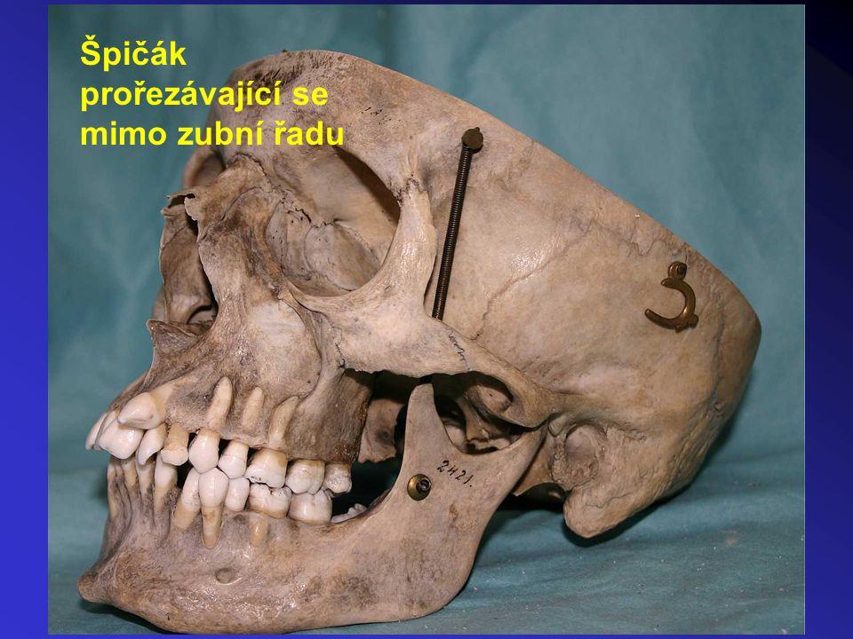 Špičák prořezávající se mimo zubní řadu