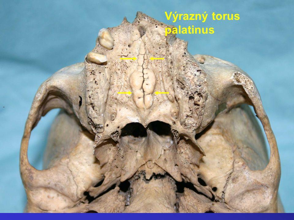 - Výrazný torus palatinus