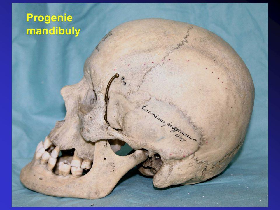 Progenie mandibuly