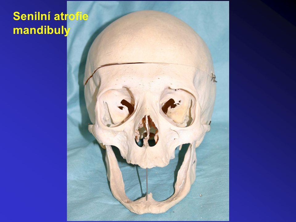 Senilní atrofie mandibuly